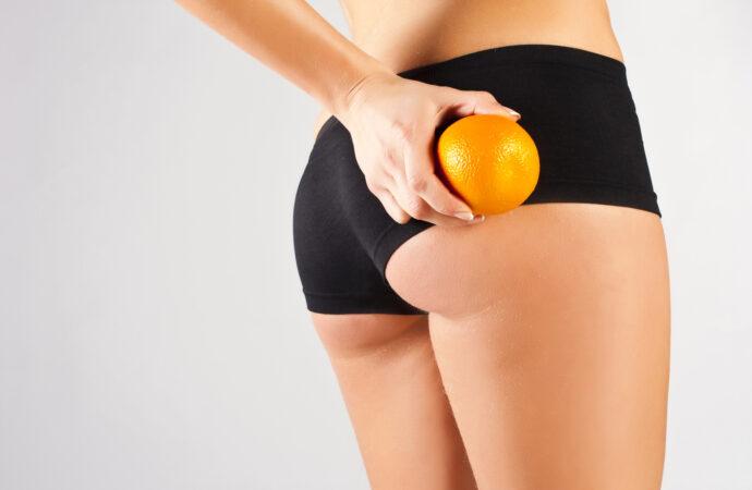 Cellulit – wróg numer 1 wszystkich kobiecych nóg